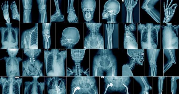 SALUTE - Radiologia, a Terrasini congresso internazionale